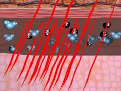 Инфракрасная сауна выводит токсины